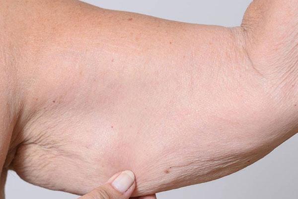 Mide Küçültme Ameliyatı Sonrası Sarkmaları Nasıl Giderilir?