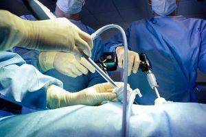 Tüp Mide Ameliyatı Sonrası Merak Edilenler